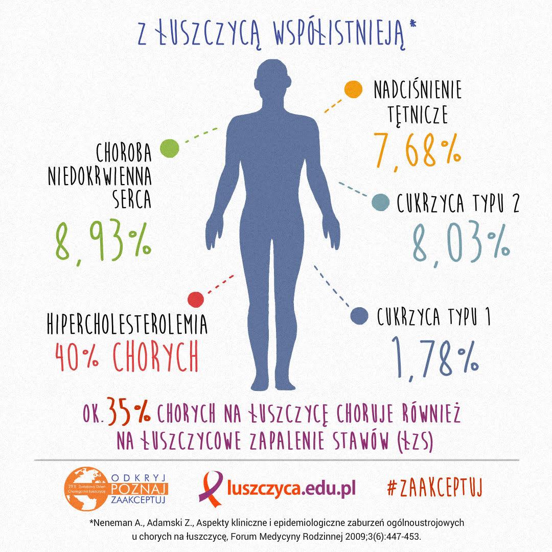 infografika-1up